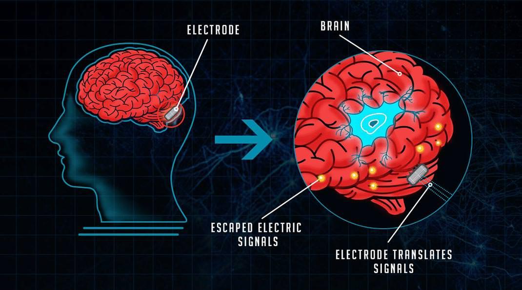 İnsan Beyni 11 Boyutlu Yapılar Oluşturabiliyor!